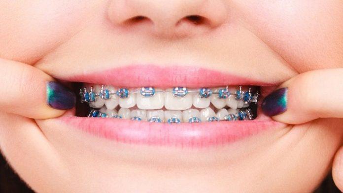 how do dentist put on braces